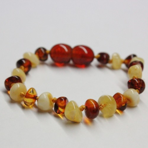 Polished Baraque Style Milky/Cognac Baltic Amber Teething Bracelet/Anklet